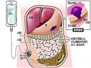 腹膜播種治療センター| 特殊有床診療部門のご案内 | 自治医科大学附属病院