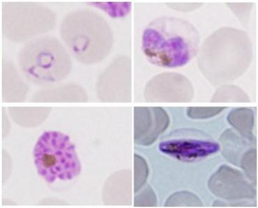 マラリア 原虫